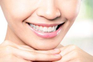 Ортодонтия — исправление прикуса