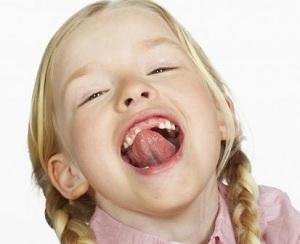 Пластика уздечки губы, языка или преддверия полости рта