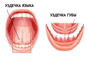 Пластика уздечки губы, языка