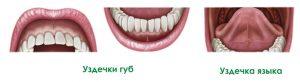 Уздечки губ и языка