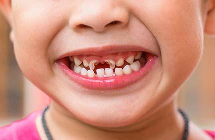 Острая травма зубов у детей