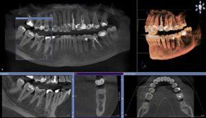 3D компьютерная томография