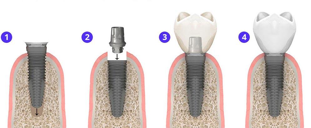 Одномоментная имплантация зуба