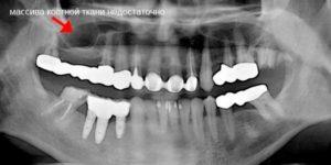 Синус лифтинг - рентген