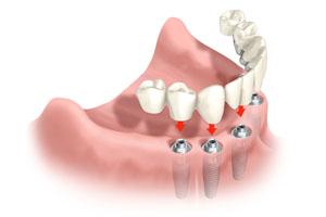 Имплантология – плюсы и минусы