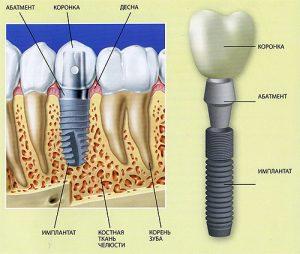 Что такое имплантация