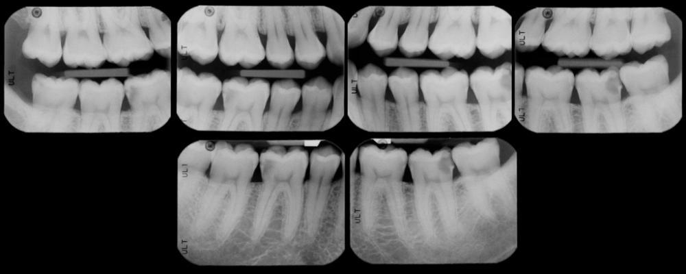 Внутриротовой (прикусный) рентген